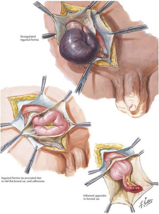inguinal hernia the british hernia centre - 558×750